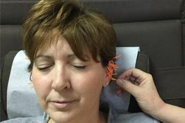 http://www.alholistichealth.com/wp-content/uploads/2016/12/services-acupuncture.jpg